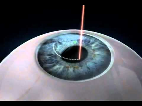 SMall-Incision-Lenticular-Extraction